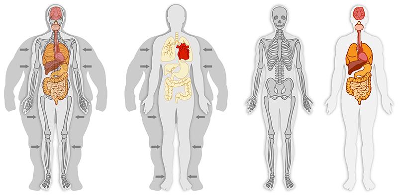Ostéopathie-obesity